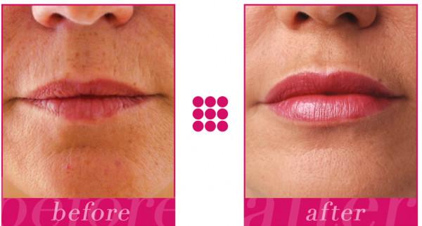 STYLAGE ® Lips Fertigspritze 1 x 1,0 ml